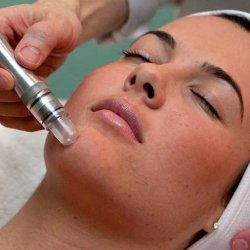 Microdermabrasion with Facial