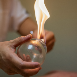 Fire Cupping - 30 minutes
