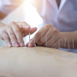 Acupuncture - 60 minutes