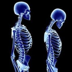 Posture Assessment