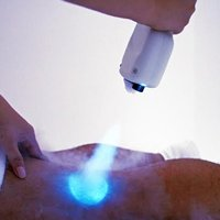 Local Cryotherapy Package