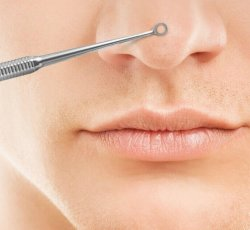 Extractions - Skin Care Treatment Add on